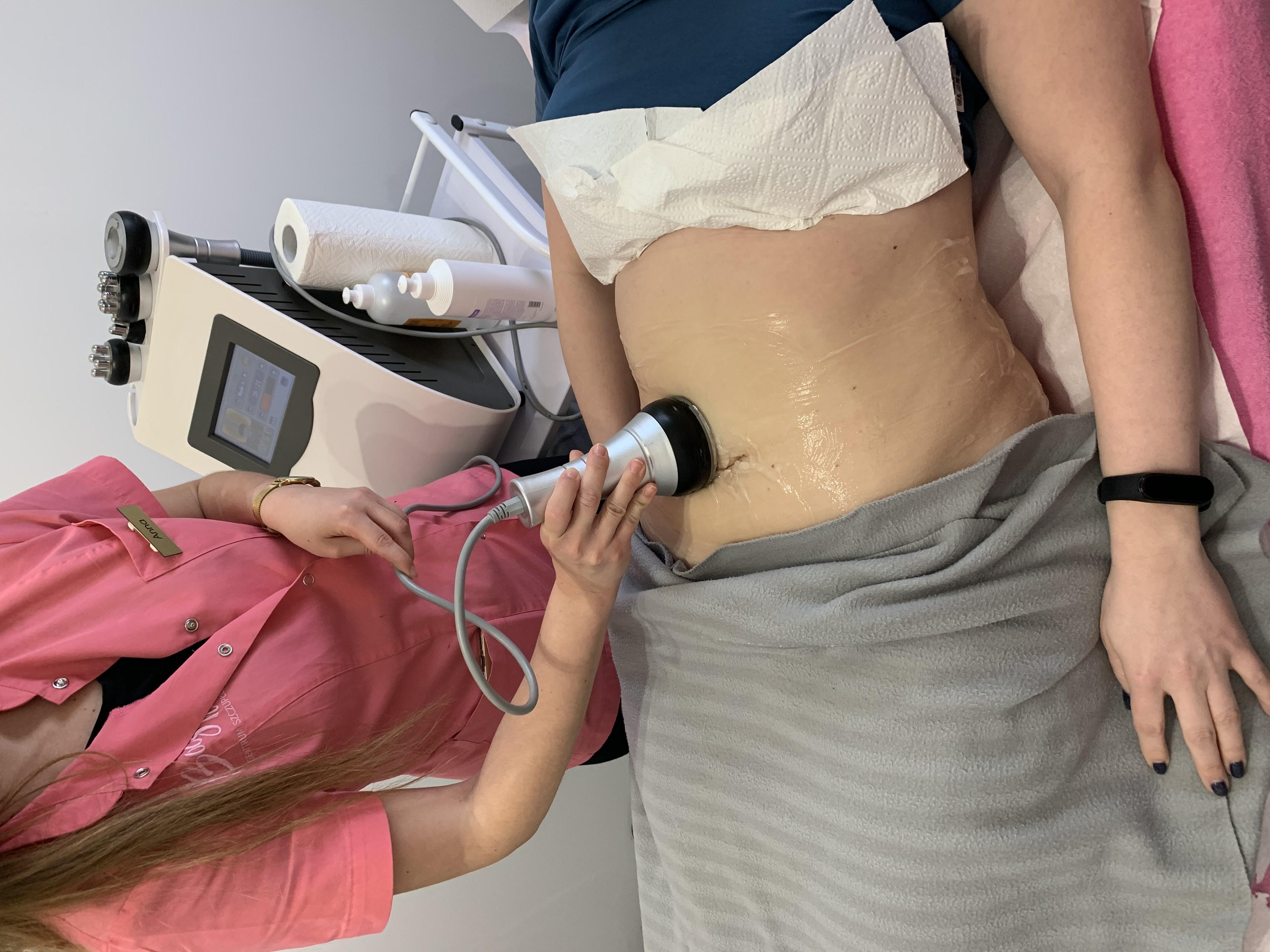 liposukcja kawitacyjna gdańsk